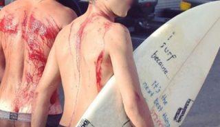 lesiones-accidentes-surf