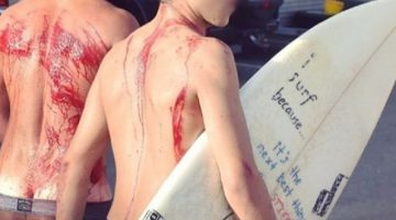 lesiones-accidentes-surf